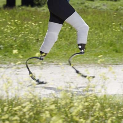 Colocamos y adaptamos las prótesis